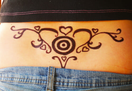 How Laser Tattoo Removal Works | Tat2X Blog